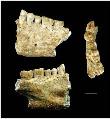 Plombages vieux de 6 500 ans découverts en Slovénie