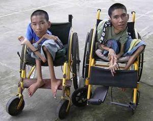deux vietnamiens victimes des conséquences de l'agent orange