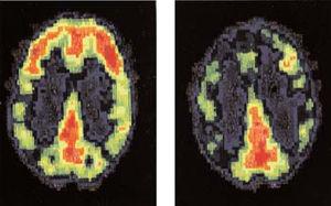 Scan du cerveau d'une personne normale et d'un tueur (à droite), qui montre l'absence d'activation du cortex préfrontal.
