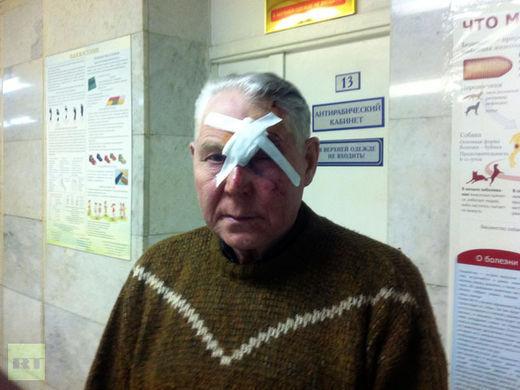 Un homme s'étant présenté sous le nom de Viktor pose pour une photo après avoir été soigné pour des blessures dans un hôpital de Tcheliabinsk.