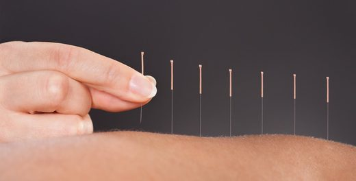 Acupuncture : L'alternative analgésique même en urgence