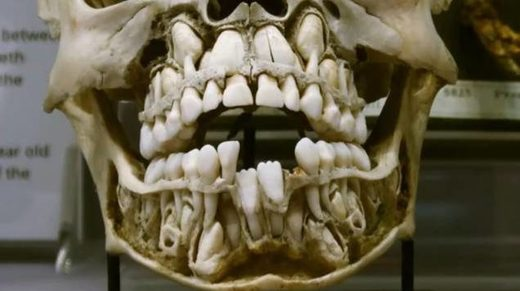 teeth double range