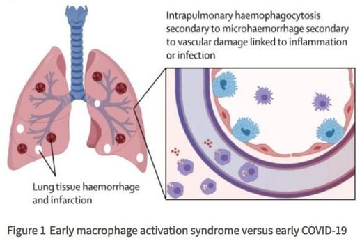 Early macrophage activation syndrome